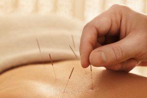 akupunktur_skummeslovsstrand